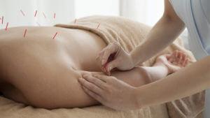 Akupunktur – Nadeln zur Linderung von Migräne, Allergie & Co.
